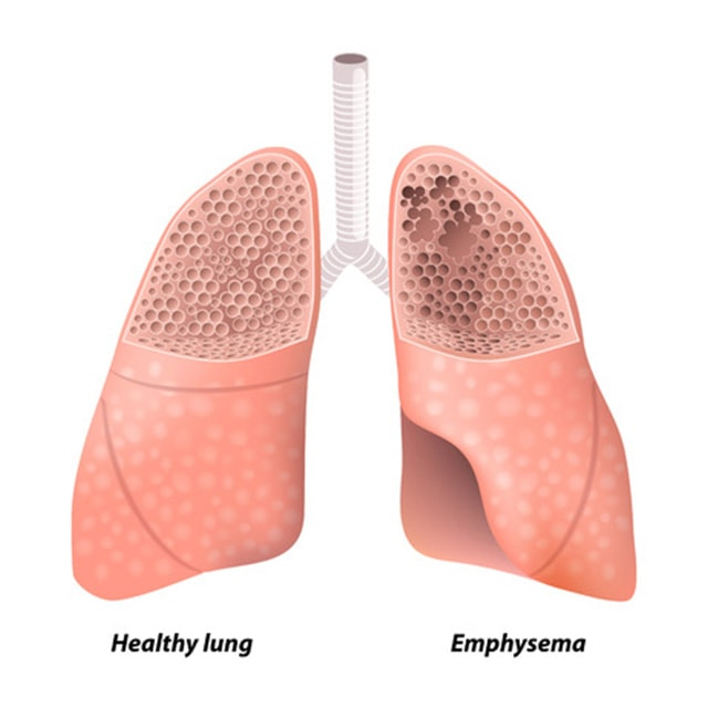 lungs-1