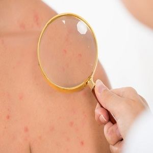 Doctor Examining Skin Acne Of Male Patient